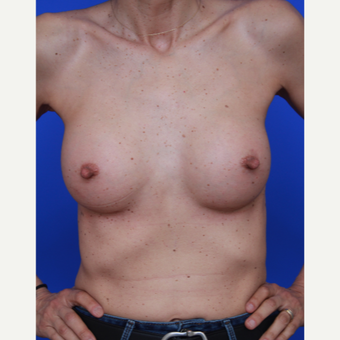 54- year old woman treated with Breast Implants after 3108817