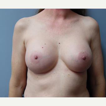 45-54 year old woman treated with Breast Augmentation after 3538952