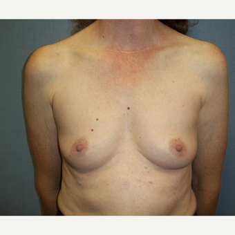 45-54 year old woman treated with Breast Augmentation before 3538952