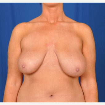 25-34 year old woman treated with Breast Reduction before 3240012
