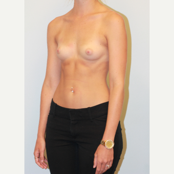 18-24 year old woman treated with Breast Augmentation before 3549660