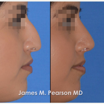 18-24 year old woman treated with Rhinoplasty before 3815228
