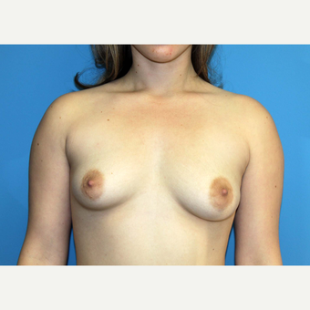 35-44 year old woman treated with Breast Augmentation before 3371073