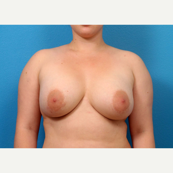 35-44 year old woman treated with Breast Augmentation after 3371073