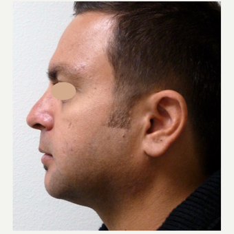 35-44 year old man treated with Rhinoplasty after 3660171