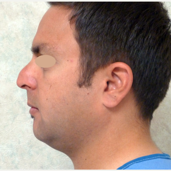 35-44 year old man treated with Rhinoplasty before 3660171