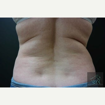45-54 year old woman treated with SculpSure before 2597690
