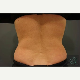 45-54 year old woman treated with SculpSure after 2597690