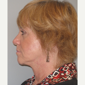 55-64 year old woman treated with Facelift after 3109389
