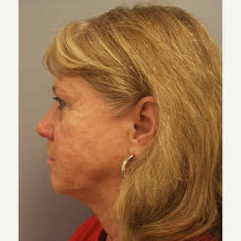55-64 year old woman treated with Facelift before 3109389