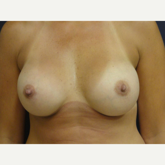 35-44 year old woman treated with Breast Implants after 3075954