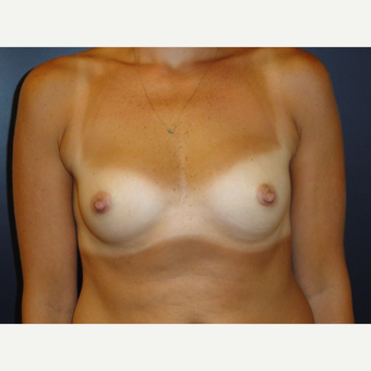 35-44 year old woman treated with Breast Implants before 3075954