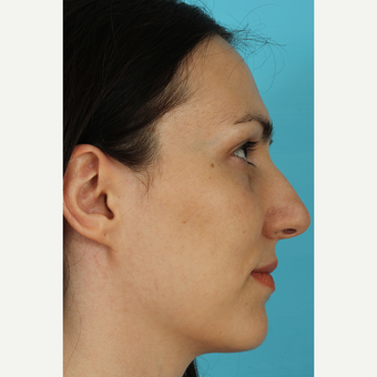 25-34 year old woman treated with Rhinoplasty before 3690803