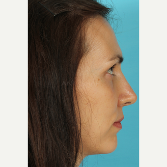 25-34 year old woman treated with Rhinoplasty after 3690803