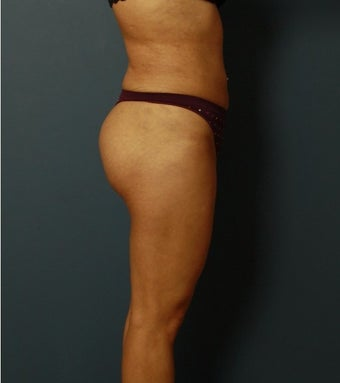 18-24 year old woman treated with Brazilian Butt Lift after 1744527