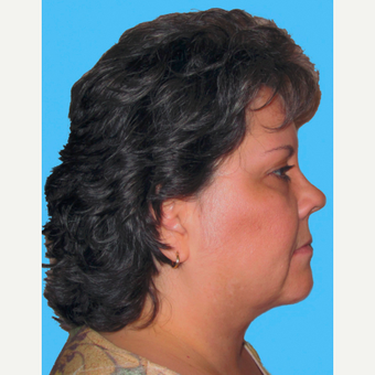 Neck Lift after 3824770