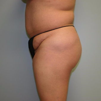 Woman treated with Liposuction before 3442268
