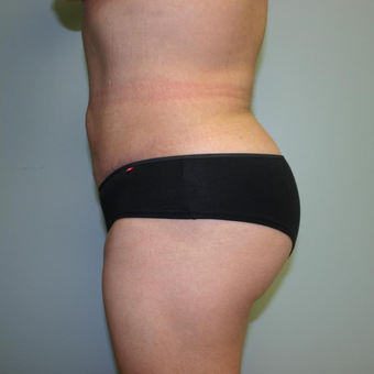 Woman treated with Liposuction after 3442268