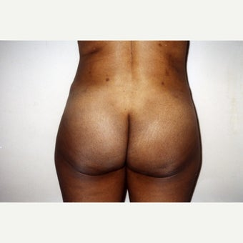 25-34 year old woman treated with Brazilian Butt Lift Revision after 2018440