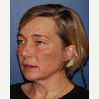 45-54 year old woman treated with Neck Lift before 3428374