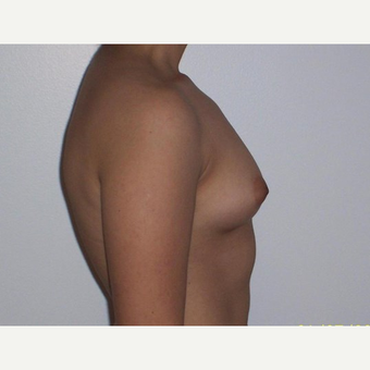 Breast Augmentation before 3560799