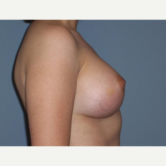 Breast Augmentation after 3560799