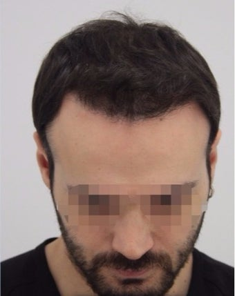 25-34 year old man treated with Hair Transplant after 2005391