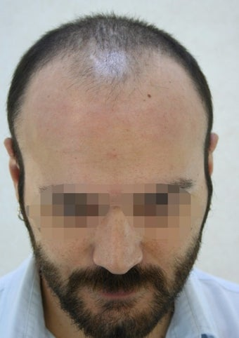 25-34 year old man treated with Hair Transplant before 2005391