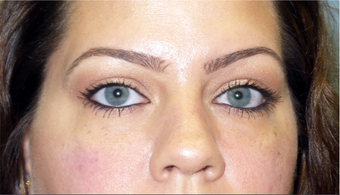 Cannula eye lift with Restylane for under-eye bags (tear trough) after 3291838