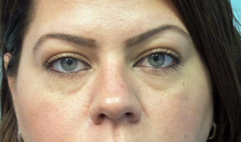 Cannula eye lift with Restylane for under-eye bags (tear trough) before 3291838
