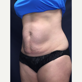 35-44 year old woman treated with SculpSure after 3725569