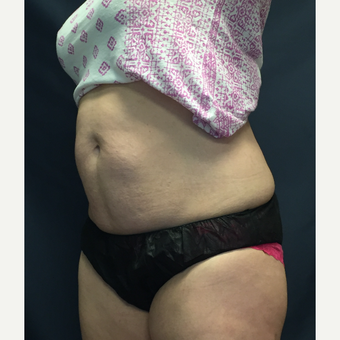 35-44 year old woman treated with SculpSure before 3725569