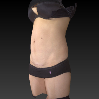 35-44 year old woman treated mini tummy tuck after 3783781