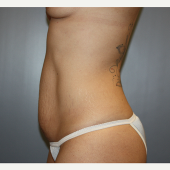 25-34 year old woman treated with Tummy Tuck before 3808915
