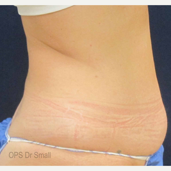 45-54 year old woman treated with Tumescent Liposuction before 3305936