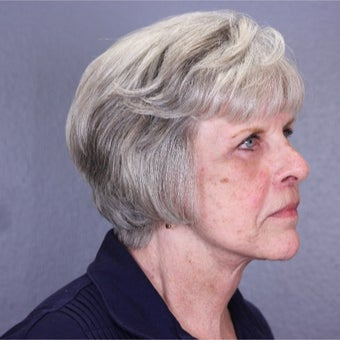 65-74 year old woman treated with Lifestyle Lift after 2098986