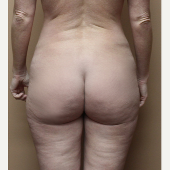 25-34 year old woman treated with Brazilian Butt Lift before 3213694