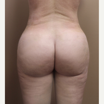 25-34 year old woman treated with Brazilian Butt Lift after 3213694