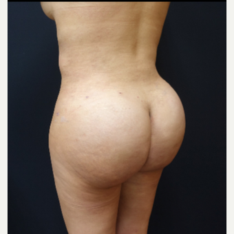25-34 year old woman treated with Fat Transfer after 3286420