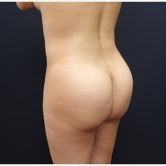 25-34 year old woman treated with Fat Transfer before 3286420