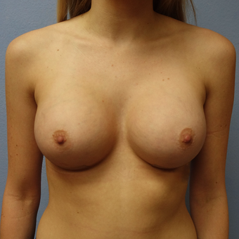 18-24 year old woman treated with Breast Implant Removal before 3254982