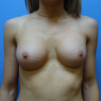 18-24 year old woman treated with Breast Implant Removal after 3254982
