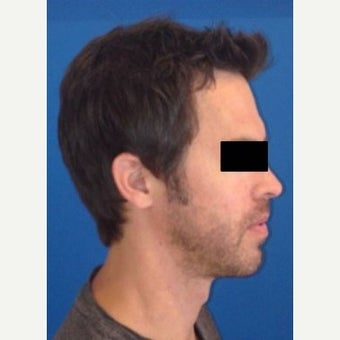 45-54 year old man treated with Chin Implant 1793953