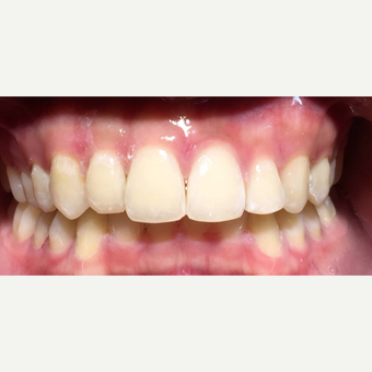 Metal Braces can do alot in nine months after 3135247