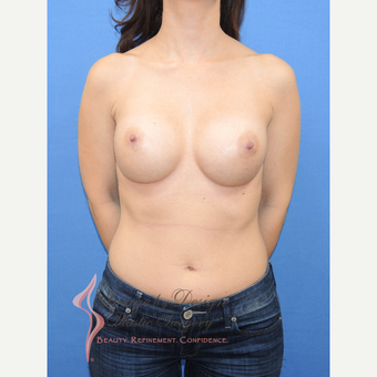 35-44 year old woman treated with Breast Implants after 3115023