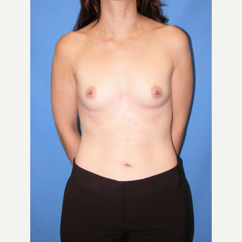 35-44 year old woman treated with Breast Implants before 3115023