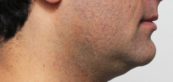 Excess fat under the chin before 1419549