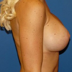 Breast Implant Revision after 2267748