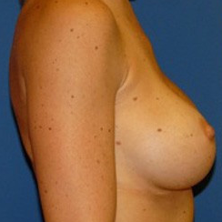 Breast Implant Revision before 2267748