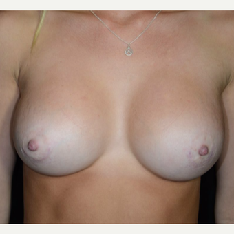 18-24 year old woman treated with Breast Augmentation after 3099323